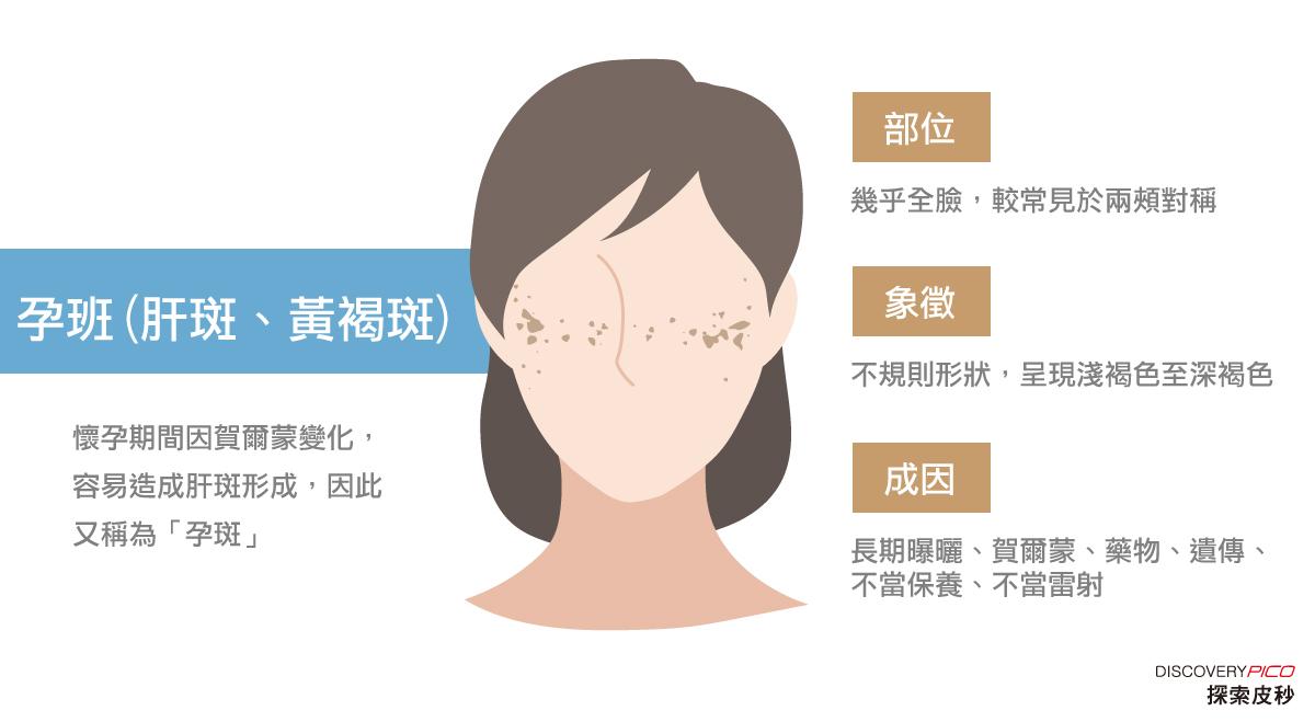 肝斑治療方式-臉